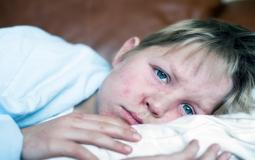 طفل مصاب بالحصبة- غوغل