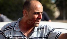 القوى بغزة تُحَمّل السلطة المسؤولية الكاملة عن مقتل الناشط نزار بنات