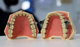 قفل الاسنان.